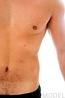 Male Breast Reduction Pasadena